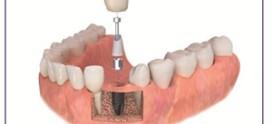 نکاتی در مورد ایمپلنت دندان