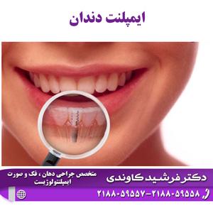 ایمپلنت (کاشت دندان) در فک بالا و پایین