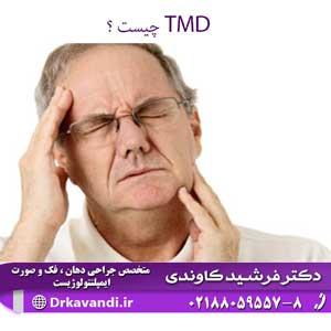 TMD چیست  ؟
