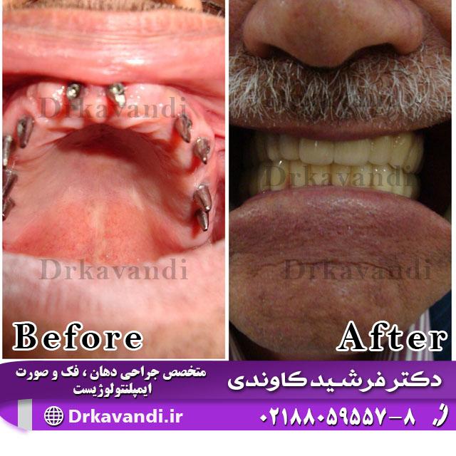 جایگزین دندان از دست رفته