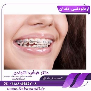 اردتودنسی دندان