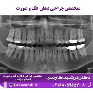 متخصص جراحی دهان فک و صورت