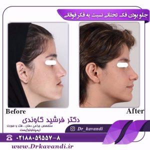 جراح فک و صورت خوب در تهران