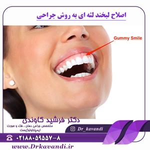 اصلاح لبخند لثه ای به روش جراحی