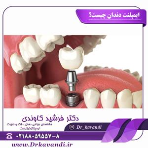 ایمپلنت دندان چیست؟