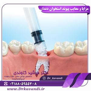 مزایا و معایب پیوند استخوان دندان