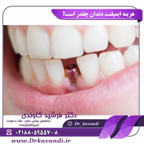 هزینه ایمپلنت دندان چقدر است؟